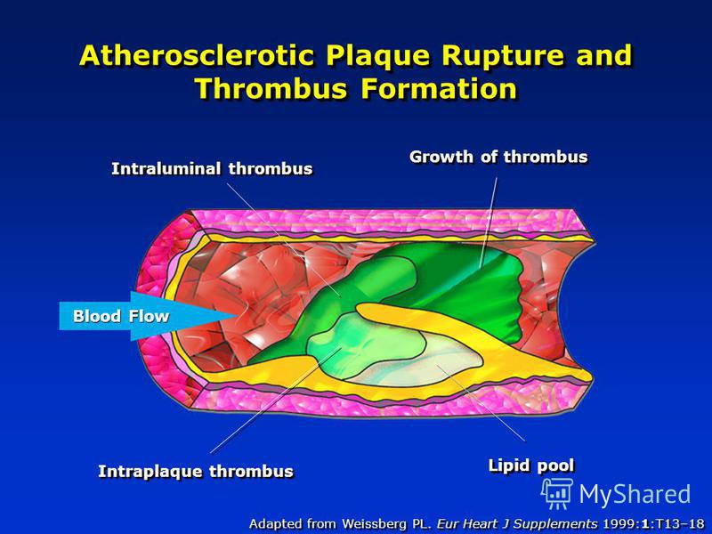 Adapted from Weissberg PL. Eur Heart J Supplements 1999:1:T13–18 Atherosclerotic Plaque Rupture and Thrombus Formation Intraluminal thrombus Growth of thrombus Intraplaque thrombus Lipid pool Blood Flow