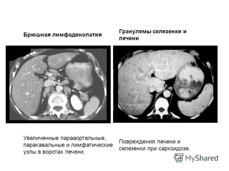 Брюшная лимфаденопатия Гранулемы селезенки и печени Увеличенные парааортальные, паракавальные и лимфатические узлы в воротах печени. Повреждения печени и селезенки при саркоидозе.