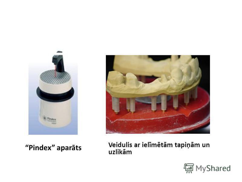 Pindex aparāts Veidulis ar ielīmētām tapiņām un uzlikām