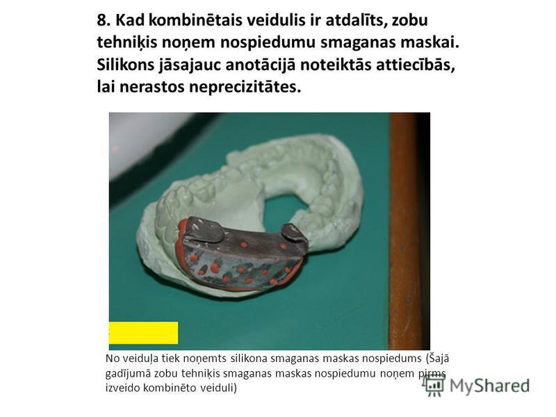 8. Kad kombinētais veidulis ir atdalīts, zobu tehniķis noņem nospiedumu smaganas maskai. Silikons jāsajauc anotācijā noteiktās attiecībās, lai nerastos neprecizitātes. No veiduļa tiek noņemts silikona smaganas maskas nospiedums (Šajā gadījumā zobu te