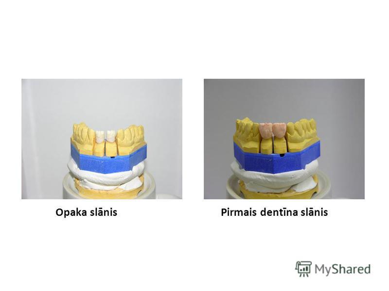 Opaka slānisPirmais dentīna slānis