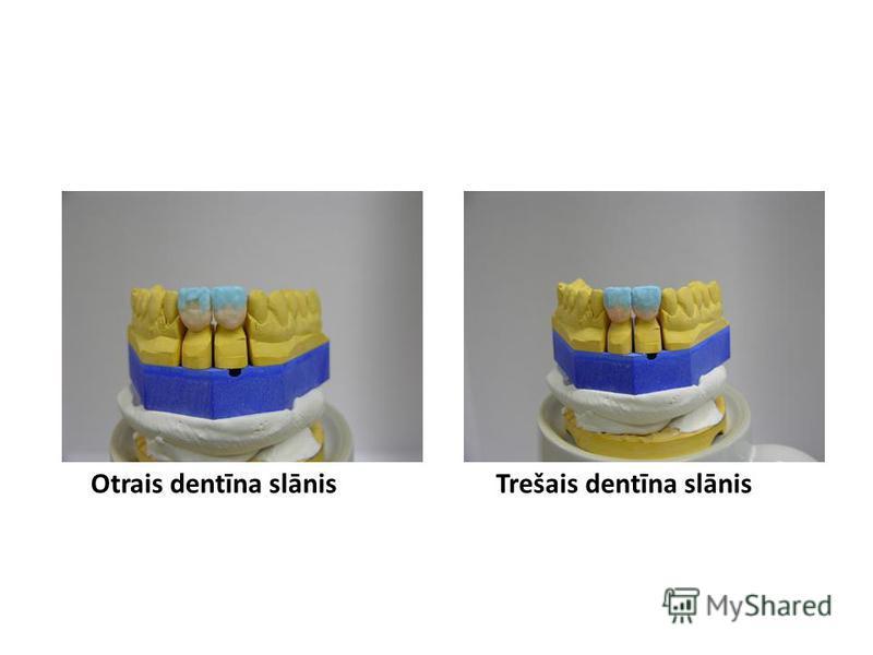 Otrais dentīna slānisTrešais dentīna slānis