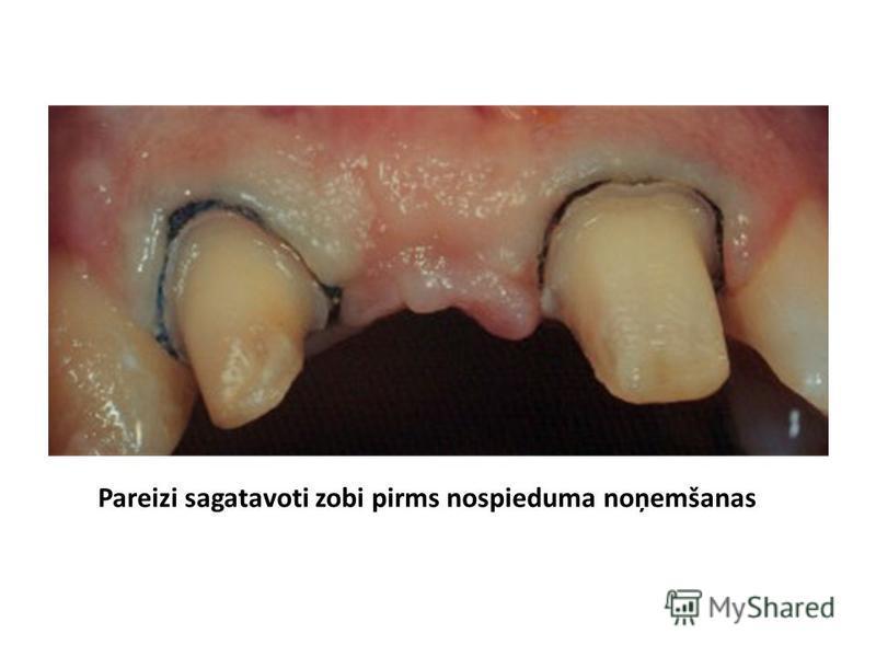 Pareizi sagatavoti zobi pirms nospieduma noņemšanas