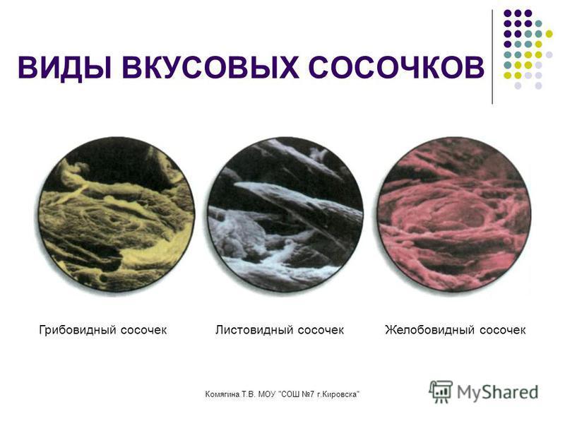 ВИДЫ ВКУСОВЫХ СОСОЧКОВ Грибовидный сосочек Листовидный сосочек Желобовидный сосочек