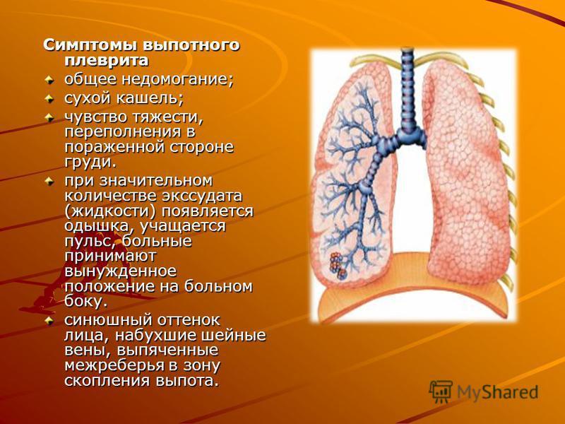 Симптомы выпотного плеврита общее недомогание; сухой кашель; чувство тяжести, переполнения в пораженной стороне груди. при значительном количестве экссудата (жидкости) появляется одышка, учащается пульс, больные принимают вынужденное положение на бол