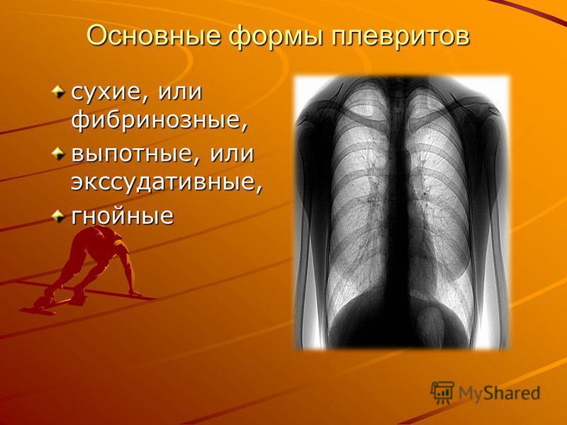 Основные формы плевритов сухие, или фибринозные, выпотные, или экссудативные, гнойные