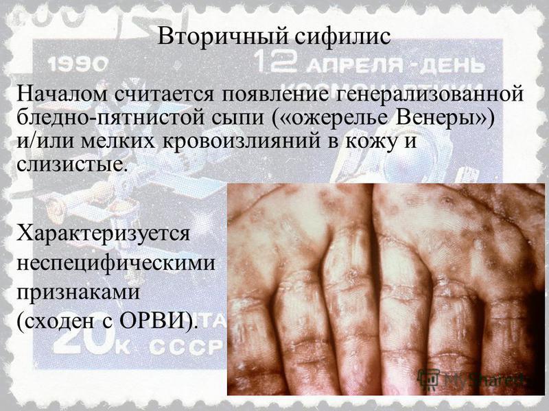 Началом считается появление генерализованной бледно-пятнистой сыпи («ожерелье Венеры») и/или мелких кровоизлияний в кожу и слизистые. Характеризуется неспецифическими признаками (сходен с ОРВИ). Вторичный сифилис