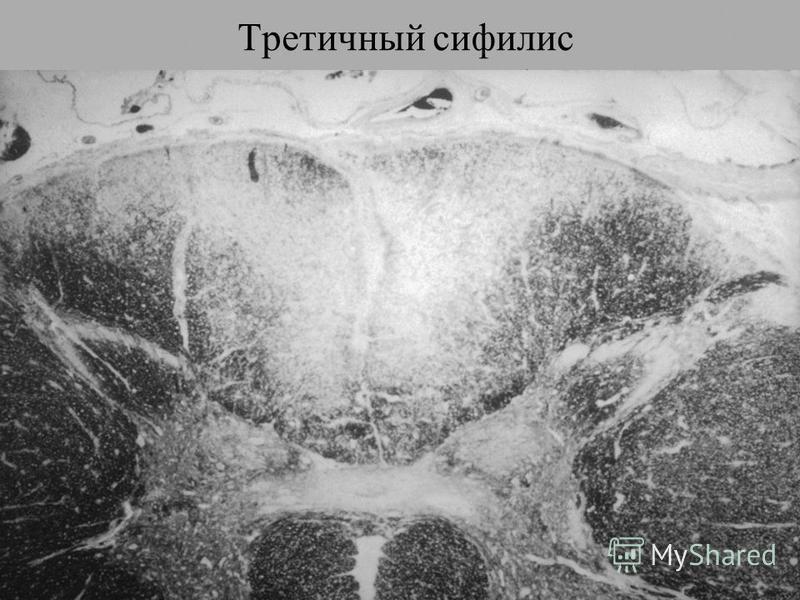Спинная сухотка характеризуется поражением спинальных нервов, нервных ганглиев и задних столбов спинного мозга. В результате у больного формируется специфическое нарушение походки сенситивная атаксия. Больной во время ходьбы не ощущает опоры. Он не м