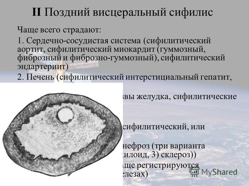Чаще всего страдают: 1. Сердечно-сосудистая система (сифилитический аортит, сифилитический миокардит (гуммозный, фиброзный и фиброзно-гуммозный), сифилитический эндартериит) 2. Печень (сифилитический интерстициальный гепатит, гуммы печени) 3. ЖКТ (си