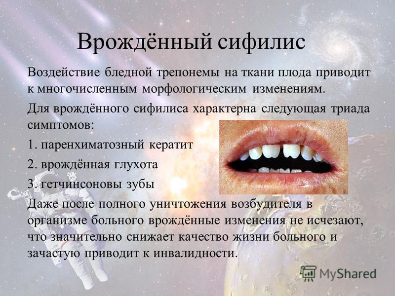 Врождённый сифилис Воздействие бледной трепонемы на ткани плода приводит к многочисленным морфологическим изменениям. Для врождённого сифилиса характерна следующая триада симптомов: 1. паренхиматозный кератит 2. врождённая глухота 3. гетчинсоновы зуб
