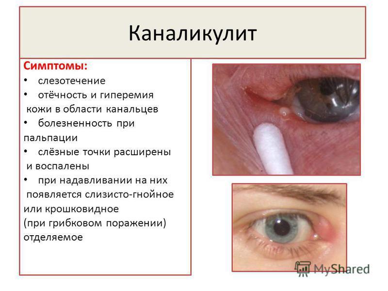Каналикулит Симптомы: слезотечение отёчность и гиперемия кожи в области канальцев болезненность при пальпации слёзные точки расширены и воспалены при надавливании на них появляется слизисто-гнойное или крошка видное (при грибковом поражении) отделяем