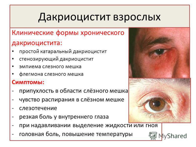 Дакриоцистит взрослых Клинические формы хронического дакриоцистита: простой катаральный дакриоцистит стенозирующий дакриоцистит эмпиема слезного мешка флегмона слезного мешка Симптомы: -припухлость в области слёзного мешка -чувство распирания в слёзн