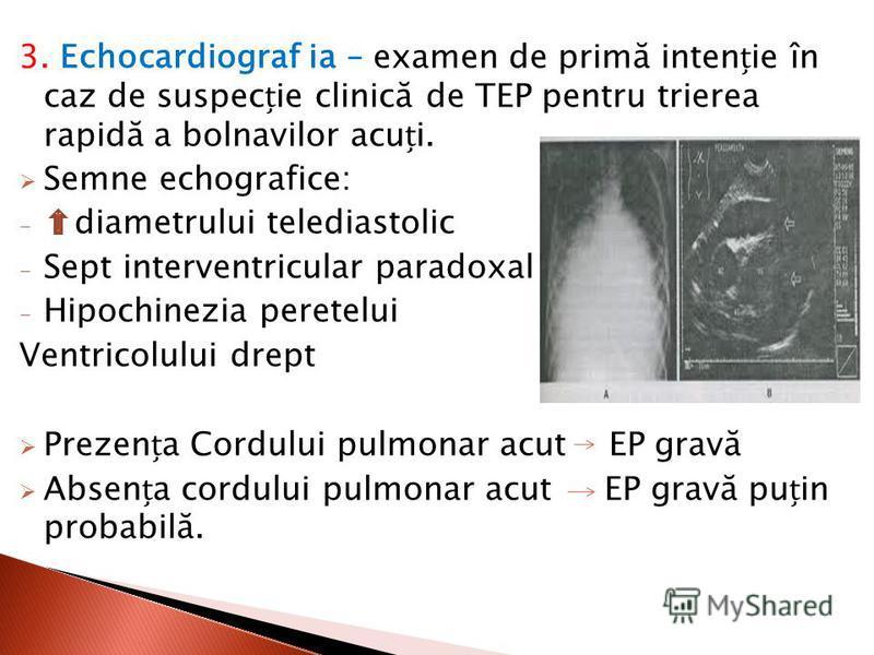 3. Echocardiograf ia – examen de primă intenie în caz de suspecie clinică de TEP pentru trierea rapidă a bolnavilor acui. Semne echografice: - diametrului telediastolic - Sept interventricular paradoxal - Hipochinezia peretelui Ventricolului drept Pr