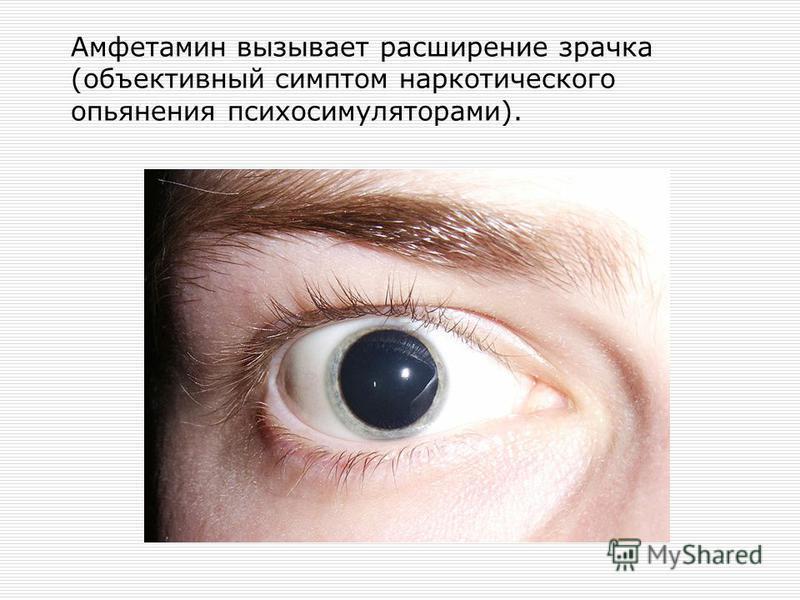 Амфетамин вызывает расширение зрачка (объективный симптом наркотического опьянения психосимуляторами).