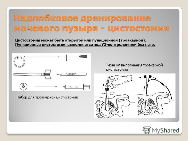 Надлобковое дренирование мочевого пузыря - цистостомия Цистостомия может быть открытой или пункционной (троакарной). Пункционная цистостомия выполняется под УЗ-контролем или без него. Набор для троакарной цистостомии Техника выполнения троакарной цис
