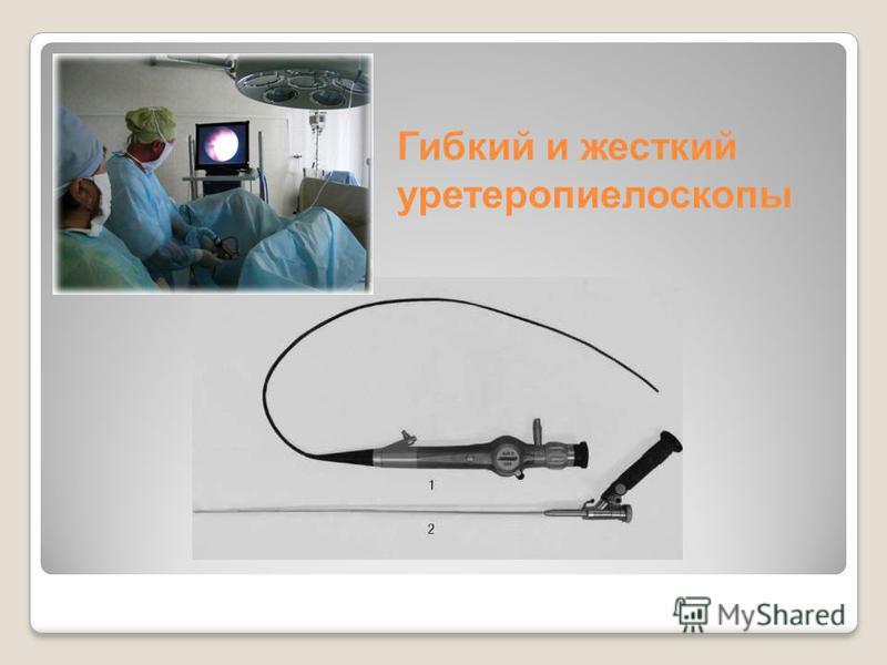Гибкий и жесткий уретеропиелоскопы