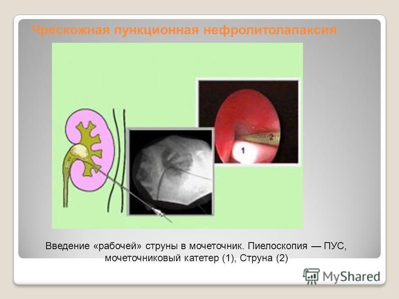 Чрескожная пункционная нефролитолапаксия Введение «рабочей» струны в мочеточник. Пиелоскопия ПУС, мочеточниковый катетер (1), Струна (2)