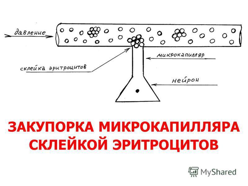 ЗАКУПОРКА МИКРОКАПИЛЛЯРА СКЛЕЙКОЙ ЭРИТРОЦИТОВ