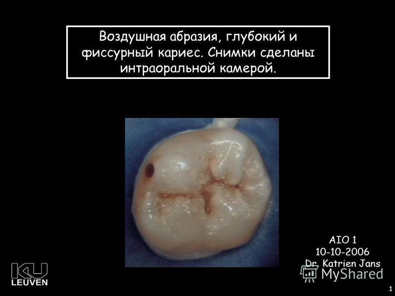 1 1 Воздушная абразия, глубокий и фиссурный кариес. Снимки сделаны интраоральной камерой. AIO 1 10-10-2006 Dr. Katrien Jans