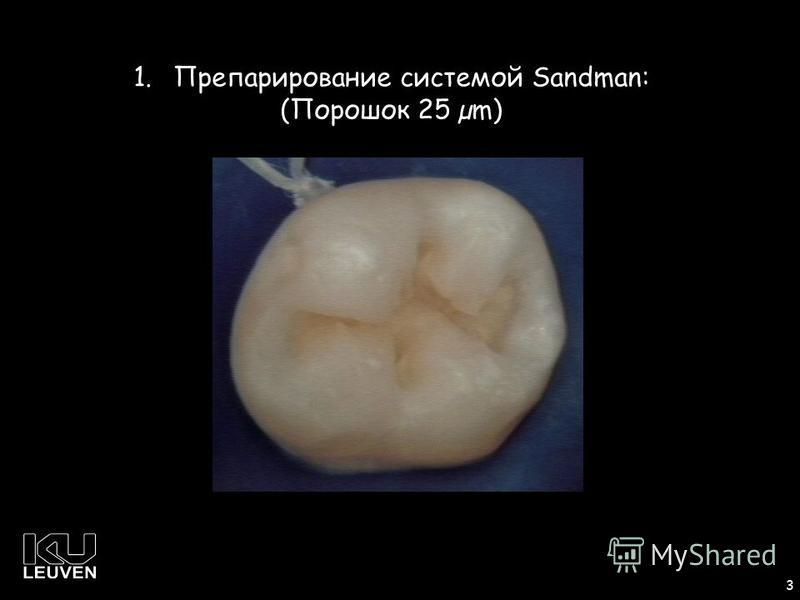 1 3 1. Препарирование системой Sandman: (Порошок 25 µm)