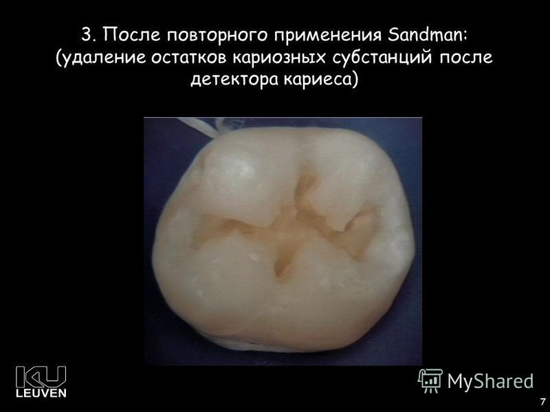 1 7 3. После повторного применения Sandman: (удаление остатков кариозных субстанций после детектора кариеса)