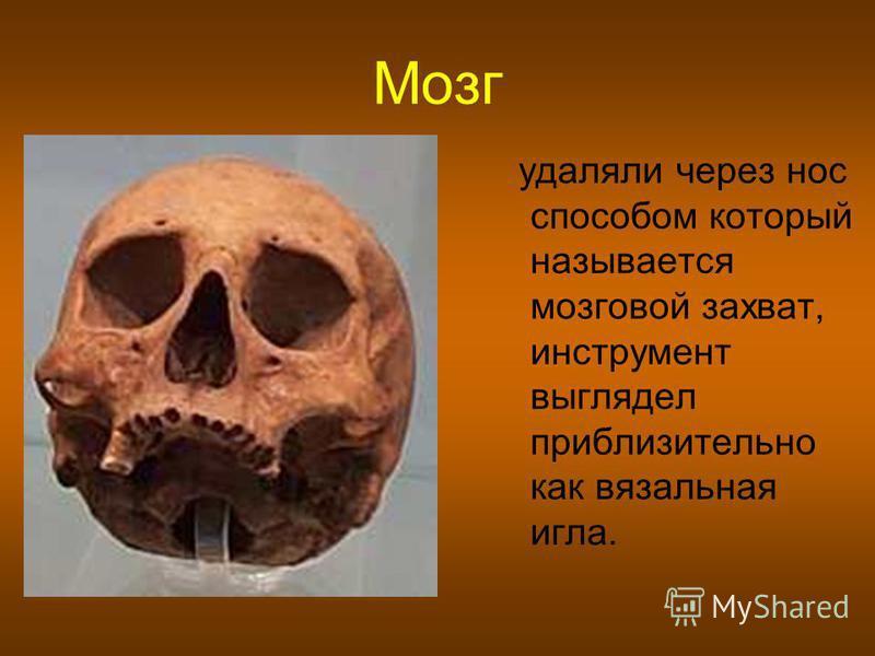 Мозг удаляли через нос способом который называется мозговой захват, инструмент выглядел приблизительно как вязальная игла.