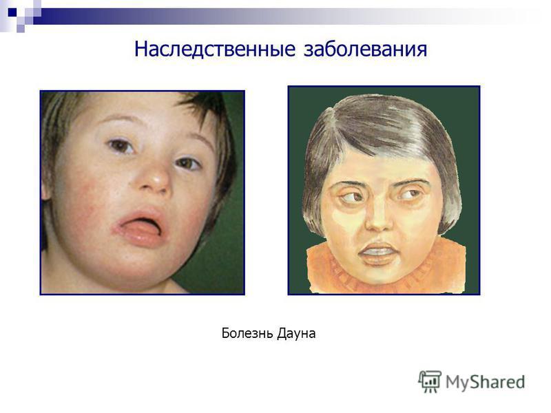 Болезнь Дауна Наследственные заболевания