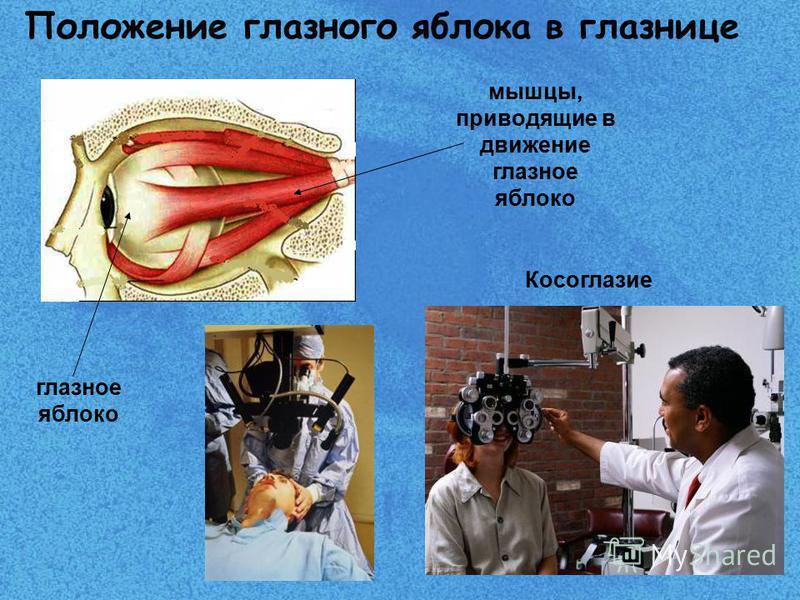 Косоглазие глазное яблоко мышцы, приводящие в движение глазное яблоко Положение глазного яблока в глазнице