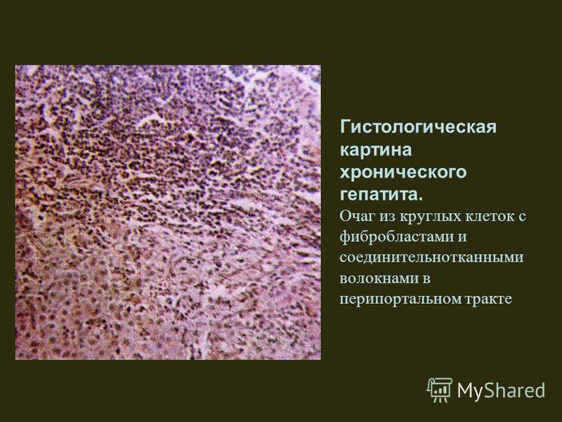 Гистологическая картина хронического гепатита. Очаг из круглых клеток с фибробластами и соединительнотканными волокнами в перипортальном тракте