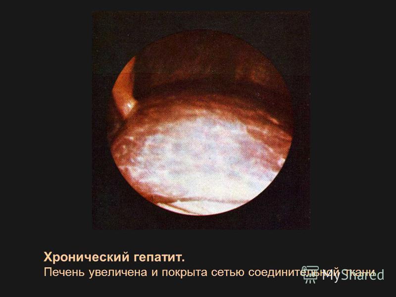 Хронический гепатит. Печень увеличена и покрыта сетью соединительной ткани