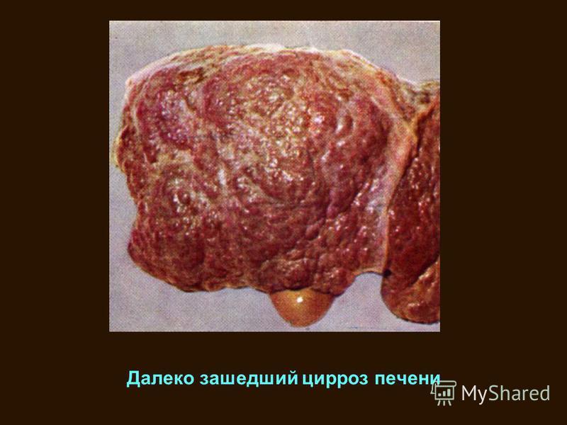 Далеко зашедший цирроз печени