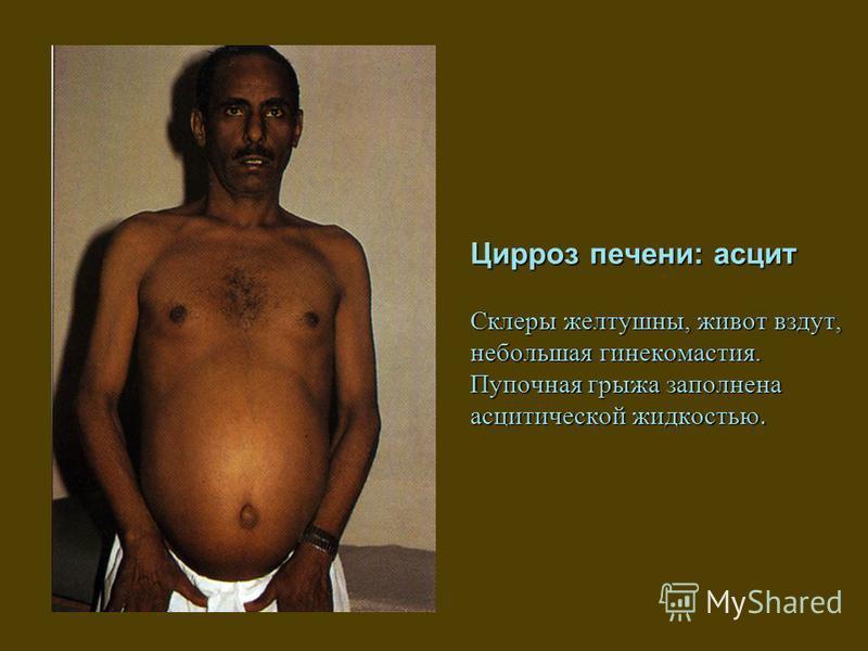 Цирроз печени: асцит Склеры желтушны, живот вздут, небольшая гинекомастия. Пупочная грыжа заполнена асцитической жидкостью.