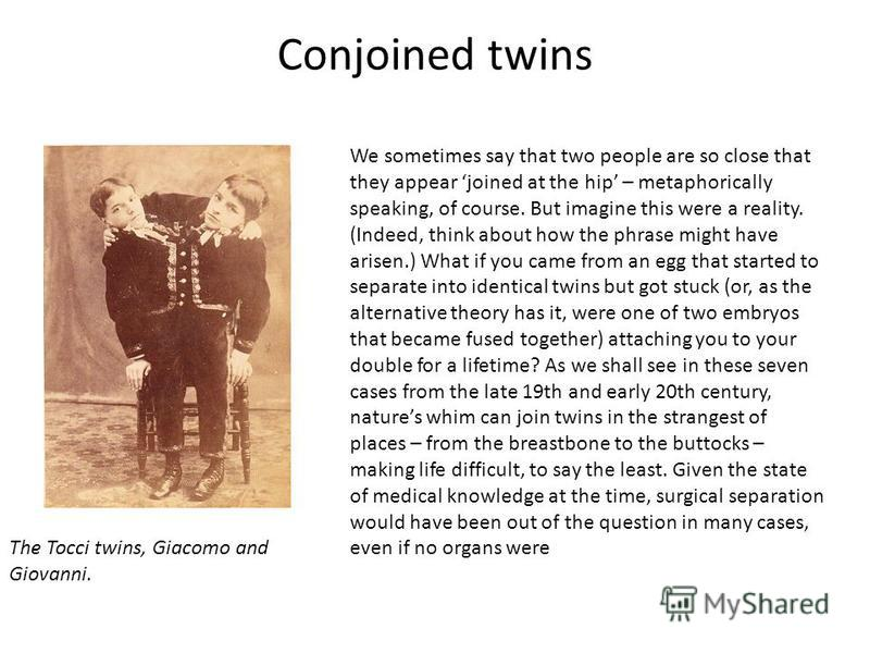 Conjoined twins The Tocci twins, Giacomo and Giovanni. We sometimes say that two people are so close that they appear joined at the hip – metaphorically speaking, of course. But imagine this were a reality. (Indeed, think about how the phrase might h