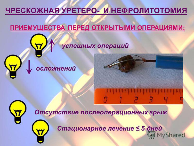 Нефролитотомия
