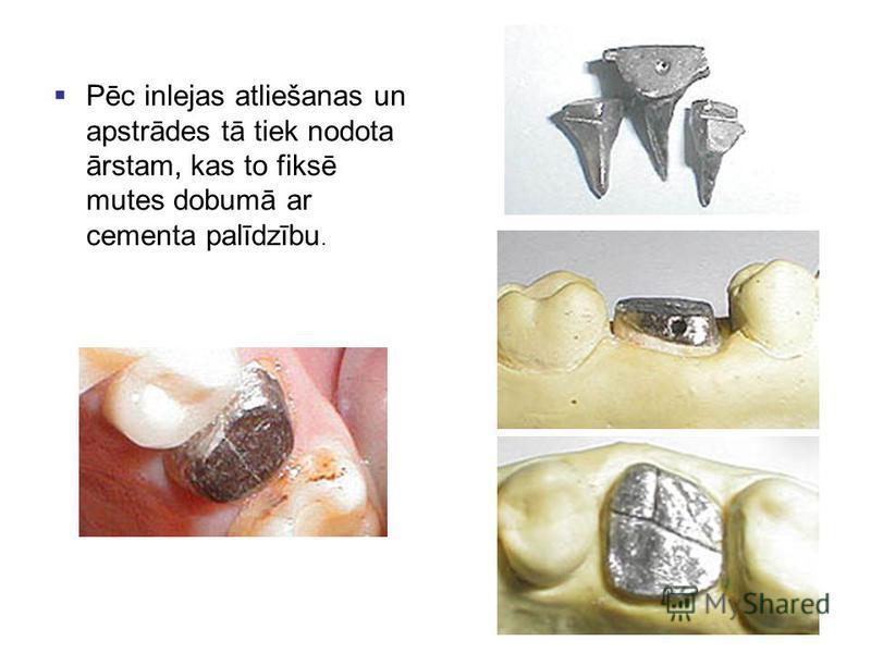 Pēc inlejas atliešanas un apstrādes tā tiek nodota ārstam, kas to fiksē mutes dobumā ar cementa palīdzību.