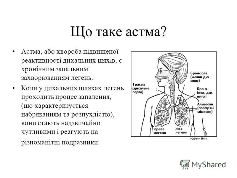 Що таке астма? Астма, або хвороба пiдвищеної реактивностi дихальних шяхiв, є хронiчним запальним захворюванням легень. Коли у дихальних шляхах легень проходить процес запалення, (що характеризується набряканням та розпухлiстю), вони стають надзвичайн
