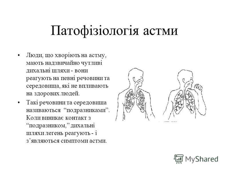 Патофiзiологiя астми Люди, що хворiють на астму, мають надзвичайно чутливi дихальнi шляхи - вони реагують на певнi речовини та середовища, якi не впливають на здорових людей. Такi речовини та середовища називаються подразниками. Коли виникає контакт