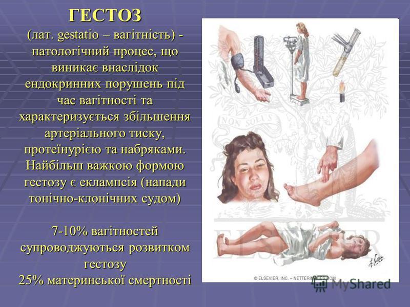 ГЕСТОЗ (лат. gestatio – вагітність) - патологічний процес, що виникає внаслідок ендокринних порушень під час вагітності та характеризується збільшення артеріального тиску, протеїнурією та набряками. Найбільш важкою формою гестозу є еклампсія (напади
