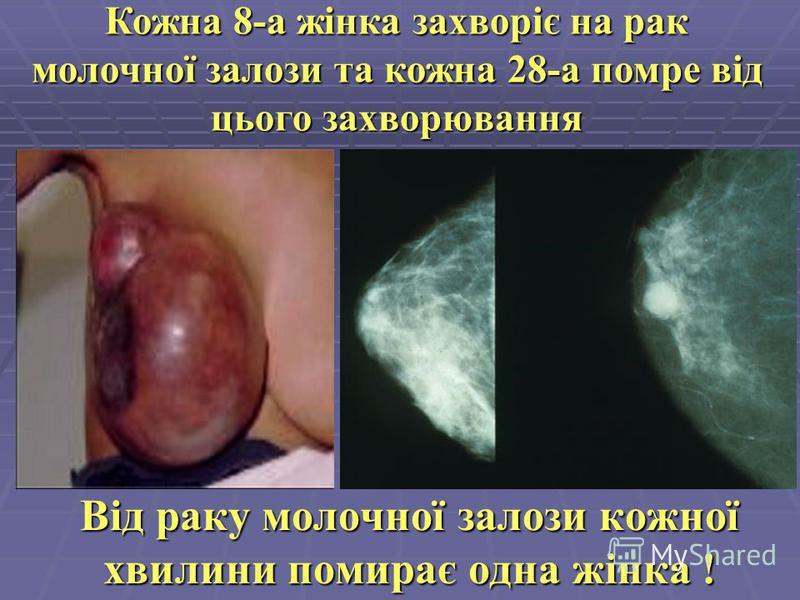 Від раку молочної залози кожної хвилини помирає одна жінка ! Кожна 8-а жінка захворіє на рак молочної залози та кожна 28-а помре від цього захворювання