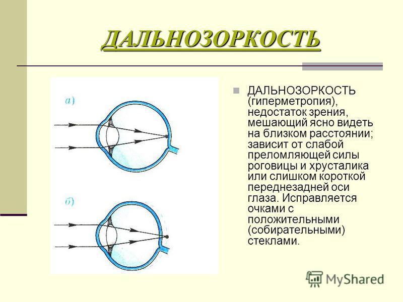 ДАЛЬНОЗОРКОСТЬ ДАЛЬНОЗОРКОСТЬ (гиперметропия), недостаток зрения, мешающий ясно видеть на близком расстоянии; зависит от слабой преломляющей силы роговицы и хрусталика или слишком короткой переднезадней оси глаза. Исправляется очками с положительными