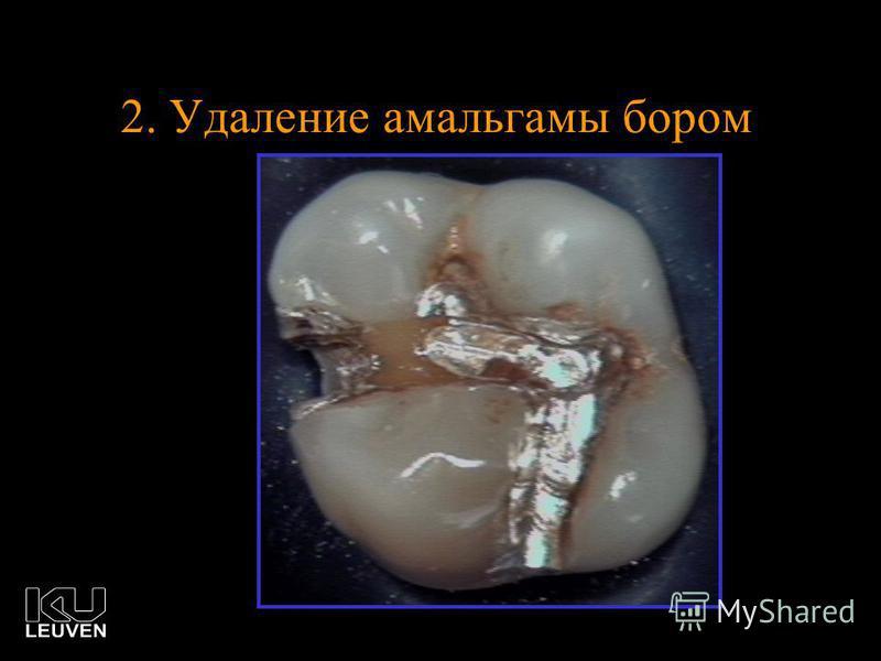 2. Удаление амальгамы бором