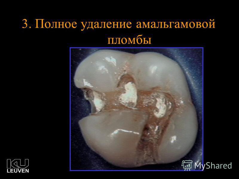 3. Полное удаление амальгамовой пломбы