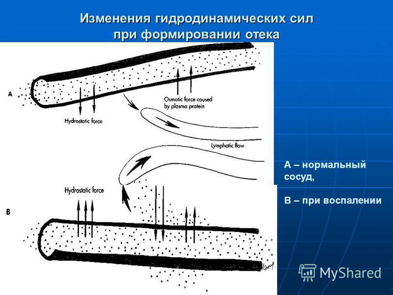 Изменения гидродинамических сил при формировании отека А – нормальный сосуд, В – при воспалении