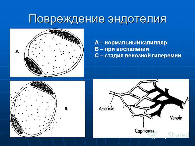 Повреждение эндотелия A – нормальный капилляр В – при воспалении С – стадия венозной гиперемии