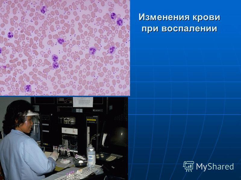 Изменения крови при воспалении
