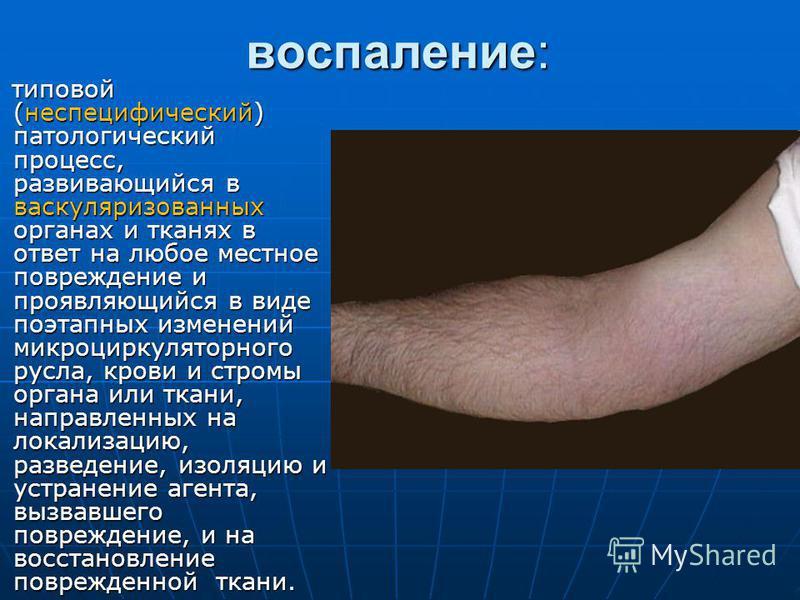 воспаление: типовой (неспецифический) патологический процесс, развивающийся в васкуляризованных органах и тканях в ответ на любое местное повреждение и проявляющийся в виде поэтапных изменений микроциркуляторного русла, крови и стромы органа или ткан