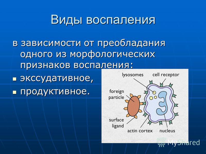 Виды воспаления в зависимости от преобладания одного из морфологических признаков воспаления: экссудативное, экссудативное, продуктивное. продуктивное.