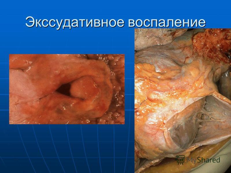 Экссудативное воспаление