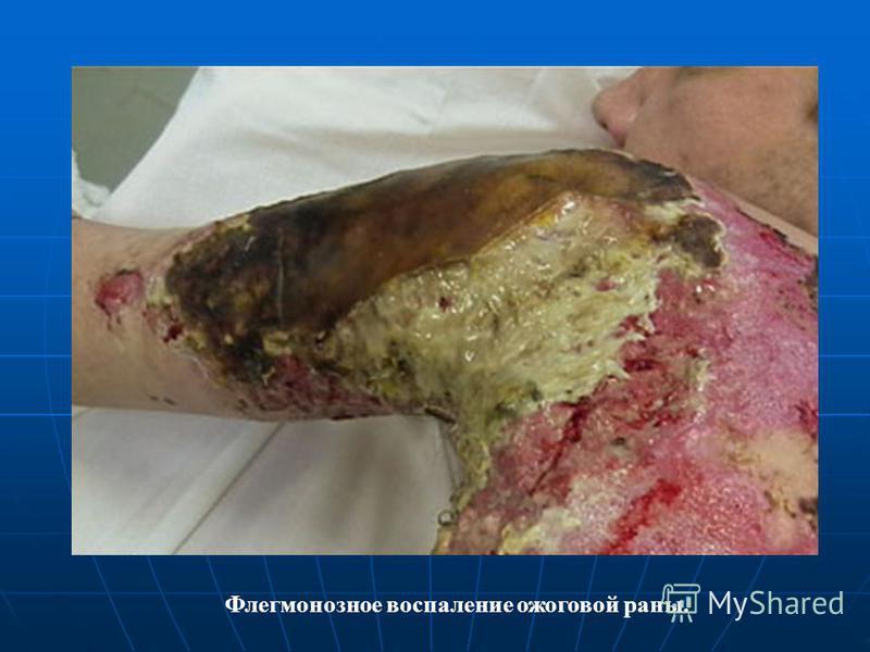 Флегмонозное воспаление ожоговой раны.