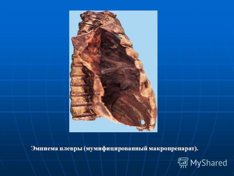 Эмпиема плевры (мумифицированный макропрепарат).